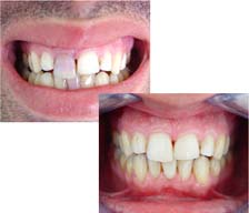 практика стоматология виниры цена